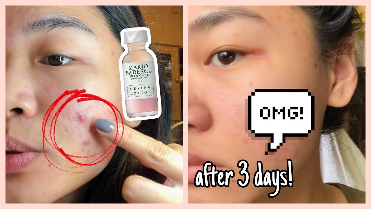 Mario Badescu Drying Lotion Review 3 Days Result