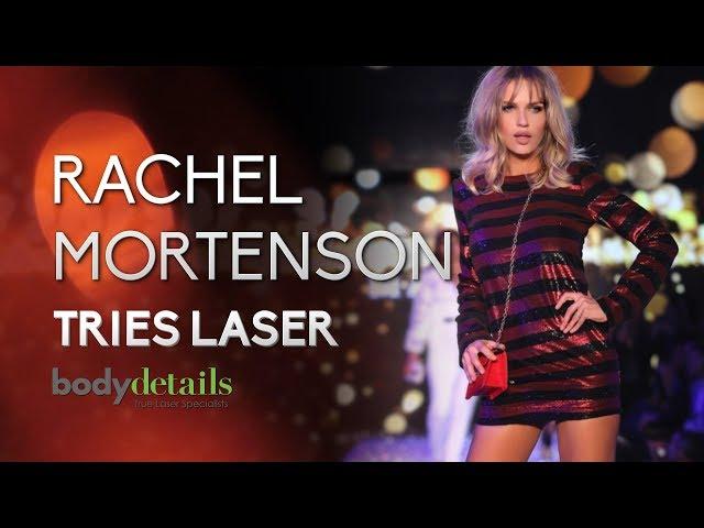 My Laser Hair Removal Experience? | Rachel Mortenson | Body Details