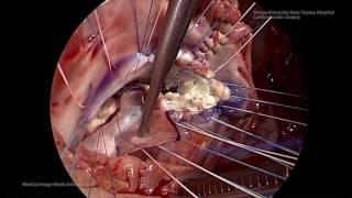 【心臓手術】エプスタイン奇形に対する弁形成術(Modified Cone operation with septal leaflet augmentation)
