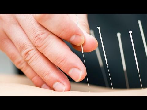 Acupuncture Paediatric
