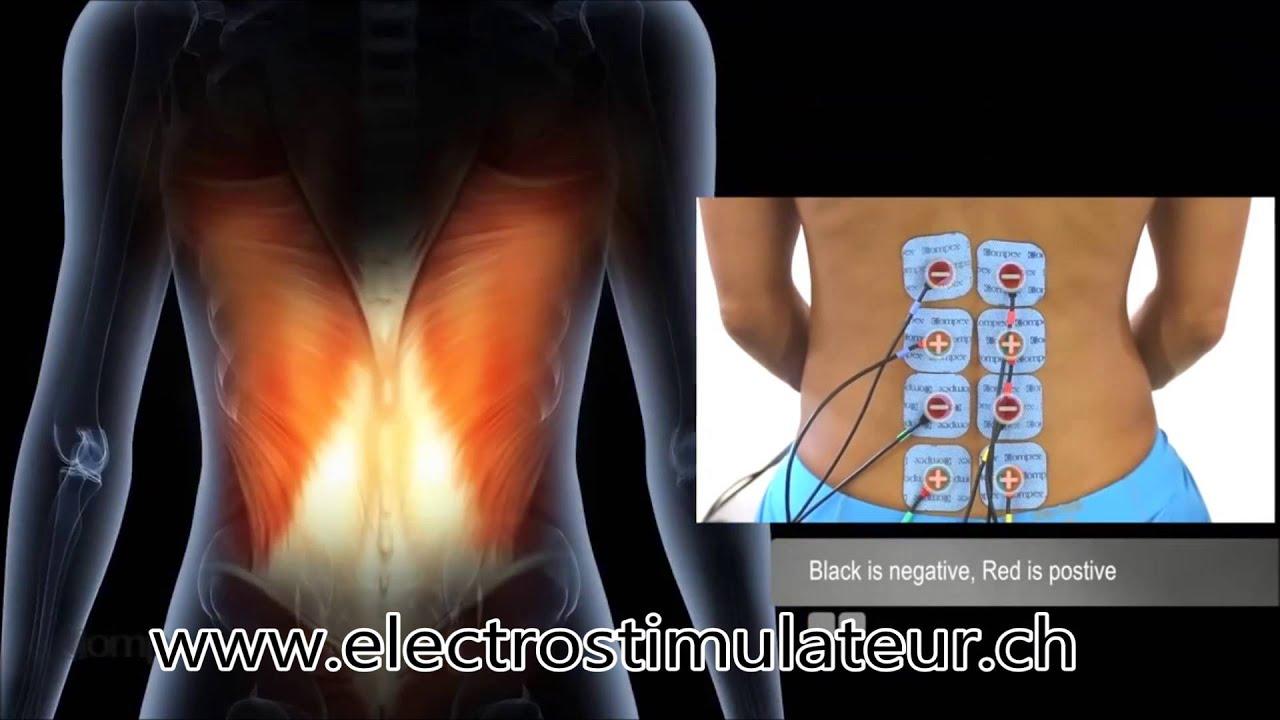 Placement Et Position Electrode Compex Lombalgie Et