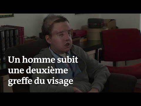 Greffé pour la seconde fois du visage, Jérôme Hamon dit se sentir « très bien »