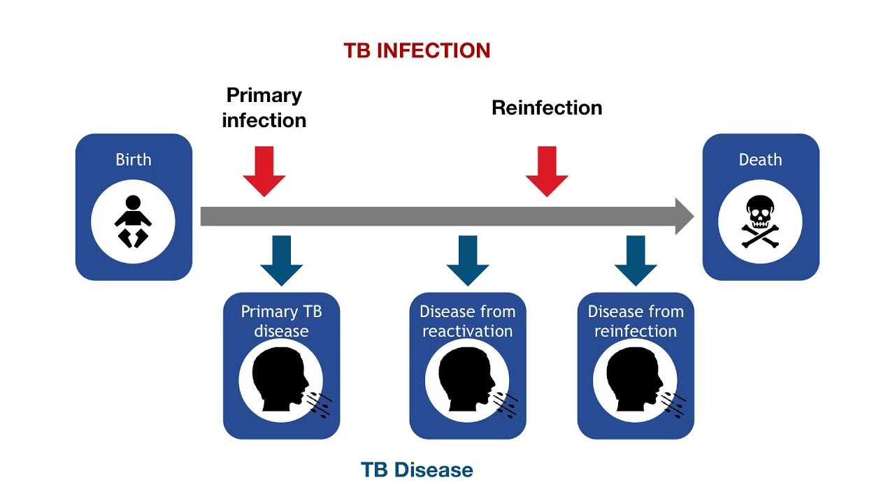 Emerging issues in tuberculosis - HEART