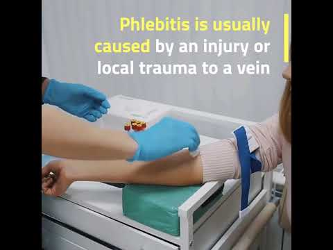 everything-you-need-to-know-about-phlebitis