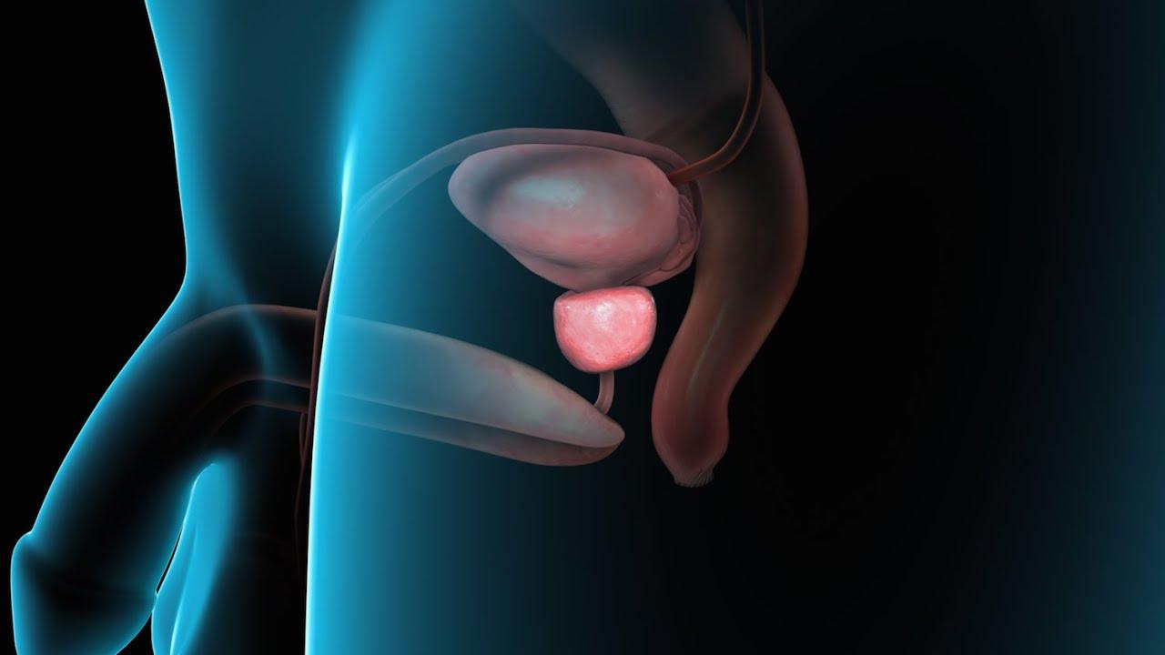 calcoli nella prostata e nella vescica worth youtube