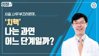 나의 치핵은 어느 단계일까?