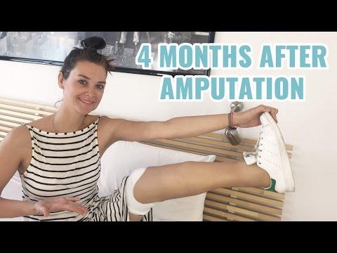 4 Months After Leg Amputation I