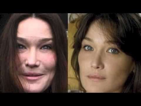 Carla bruni before and after plastic surgery youtube for Bruni arredamento