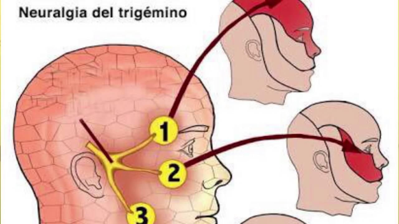 Nervios Craneales: V par - Nervio Trigémino. Dr. SERGEY KRUTKO ...
