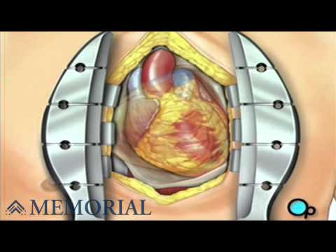 Coronary Artery Bypass Graft (CABG off-pump)