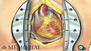 Coronary Artery Bypass Graft (CABG off-pump)