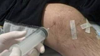 Getting my knee drained thumbnail