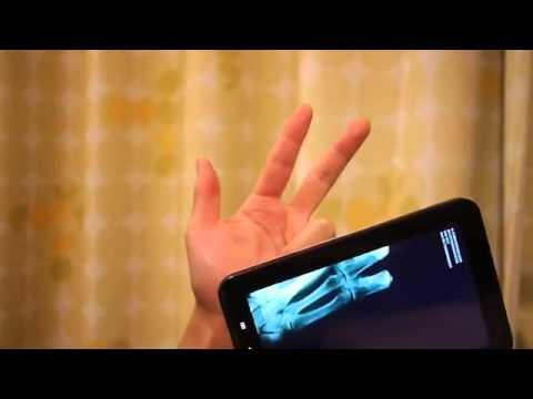 Программу на телефон мобильный рентген