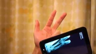 Рентген на мобильный телефон