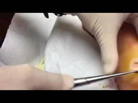 Infectious Seed Wart Frozen With Liquid Nitrogen Dr Paul