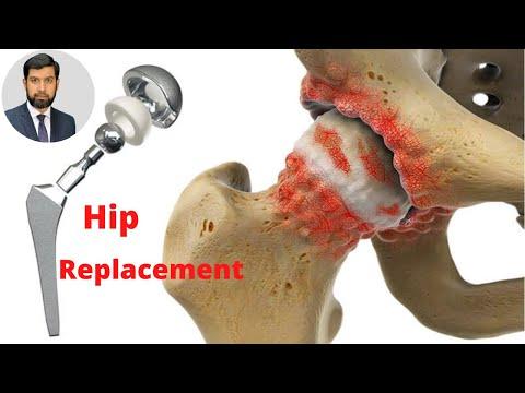 Hip Replacement, Expert Advice in Urdu | Orthopedic Specialist Dr. Muhammad Bilal in Lahore Pak.