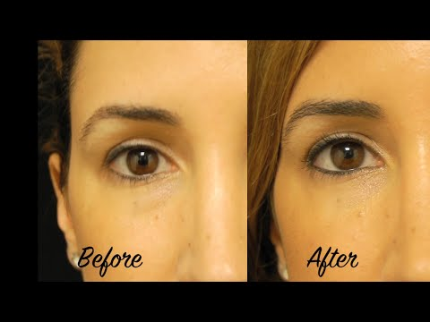 No More Tired Eyes - Under Eye Filler and Botox with Tanya Patron, PA-C - Miami Plastic Surgery