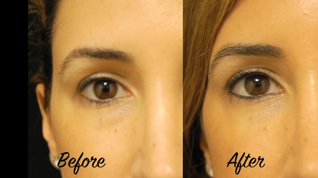 No More Tired Eyes - Under Eye Filler and Botox with Tanya