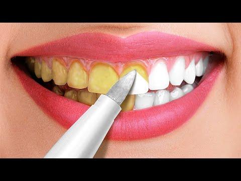 30 Astuces Incroyables Pour Des Dents Bien Blanches || Astuces Et Conseils Beauté