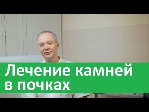 Литотрипсия (дробление камней в почках и мочеточнике)