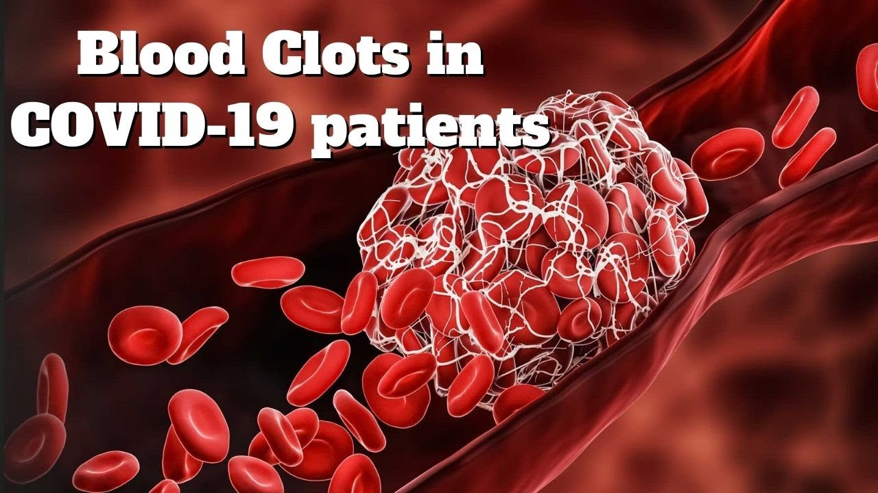 Irish scientists find the reason for blood clots in COVID-19 patients