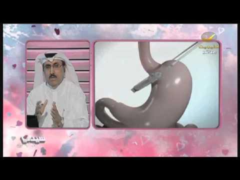فقرة السمنة الأسبوعية من #برنامج_سيدتي مع د. #عايض_القحطاني – عمليات ربط المعدة