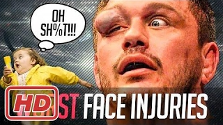 MMA TOP | Worst Face Injuries in MMA