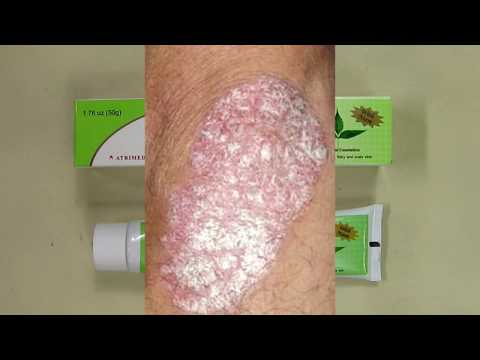 Sorion Natural Moisturizing Cream - Psoriasis Skin Care with Coconut Oil and Neem