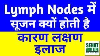 लिम्फ नोड्स सूजन, कारण, लक्षण, इलाज, Swollen Lymph Nodes, Causes, Symptoms, Treatment In Hindi