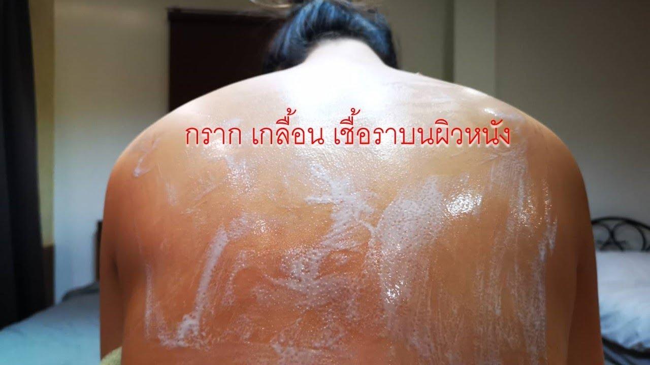 วิธีการรักษา กราก เกลื้อน เชื้อราบนผิวหนัง | Sang Goong