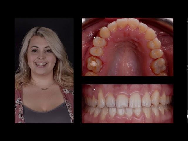 Crossbite BEFORE & AFTER | Non Extraction Braces | OrthodonticTreatment Milton, Oakville, Burlington