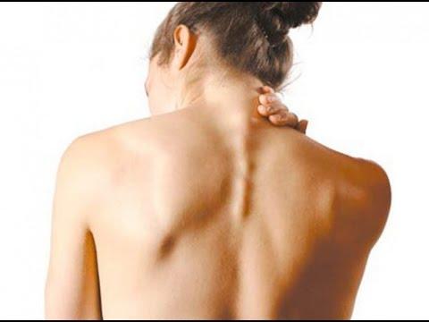 Синяк лечение спины