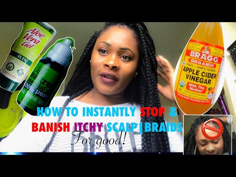 How to instantly stop and banish itchy scalp/braids for good❗️