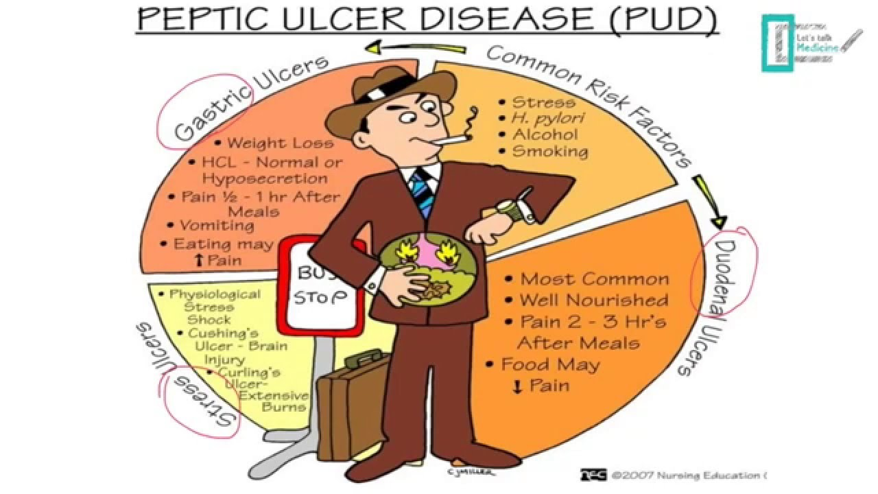 psychological stress and peptic ulcers Here are some of the things i learned about ulcers during thought psychological stress or spicy heartburn for patients with stomach ulcers.