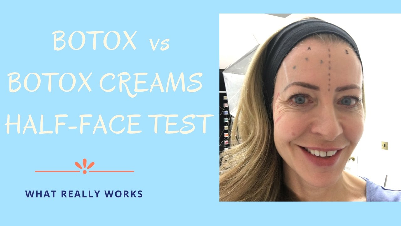 'Botox creams' v Botox: the half-face test