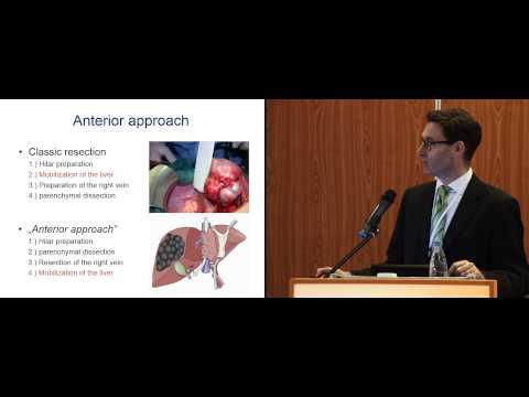 Первичный рак печени, симптомы, причины, лечение, признаки