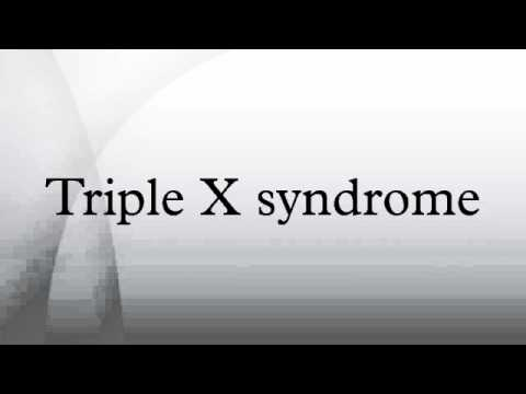 triple x syndrome Trisomy x triple x syndrome triple-x female trisomy x triple x syndrome females with 47 xxx syndrome may be taller than average.
