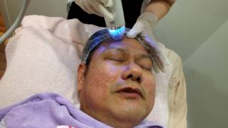 RF face lifting and skin tightening treatment for the forehead