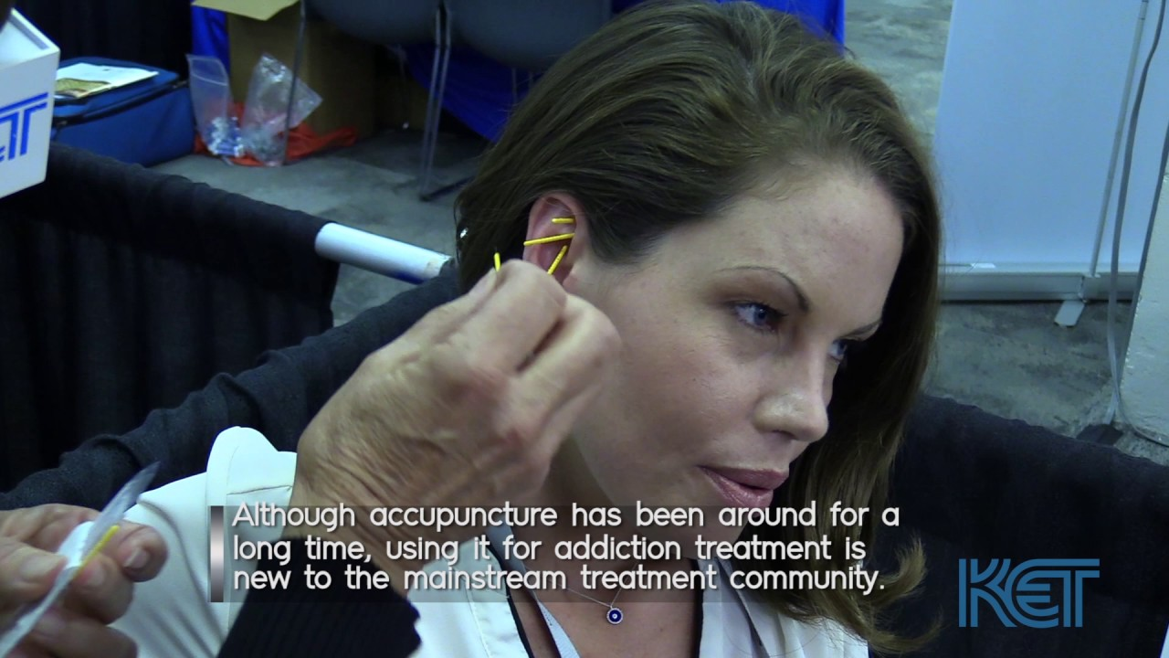Using Acupuncture For Opioid Withdrawal And Detox