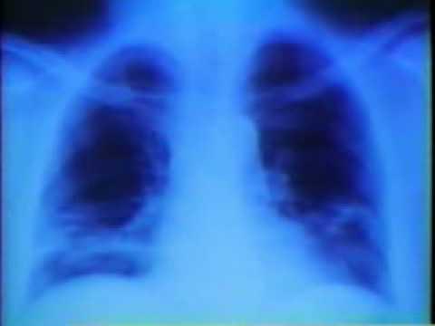 Mesothelioma Lawsuits - Asbestos Lawsuits, Mesothelioma Settlement - LawyersAndSettlements.com.flv