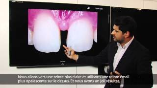 MIRIS2 - cas cliniqus - Dr. Monik Vasant - French
