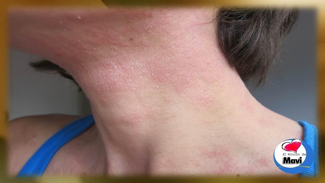 La infusión de las semillas del lino a la psoriasis