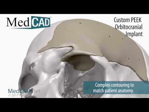 Custom PEEK Orbitocranial Implant