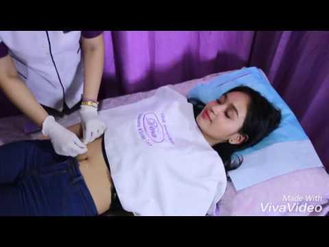 Perawatan Akupuntur Menaikkan Berat Badan dari Dina Akupuntur