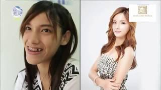 Korean Plastic Surgery Show Transforms Thai Girl's face | Seoul Guide Medical