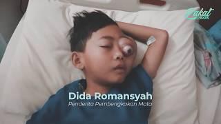 Edukasi Retinoblastoma / Kanker Mata.