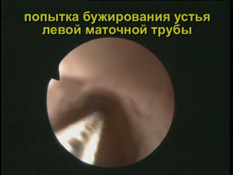 Непроходимость маточных труб.