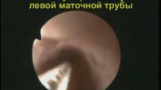 Непроходимость маточных труб.(Гистероскопические признаки непроходимости маточных труб показаны в данном видеофрагменте. У пациентки..., 2009-09-20T11:14:46.000Z)
