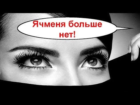Сколько болит ячмень на глазу