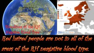 The RH Negative Blood Type:  Red Hair & Green Eyes
